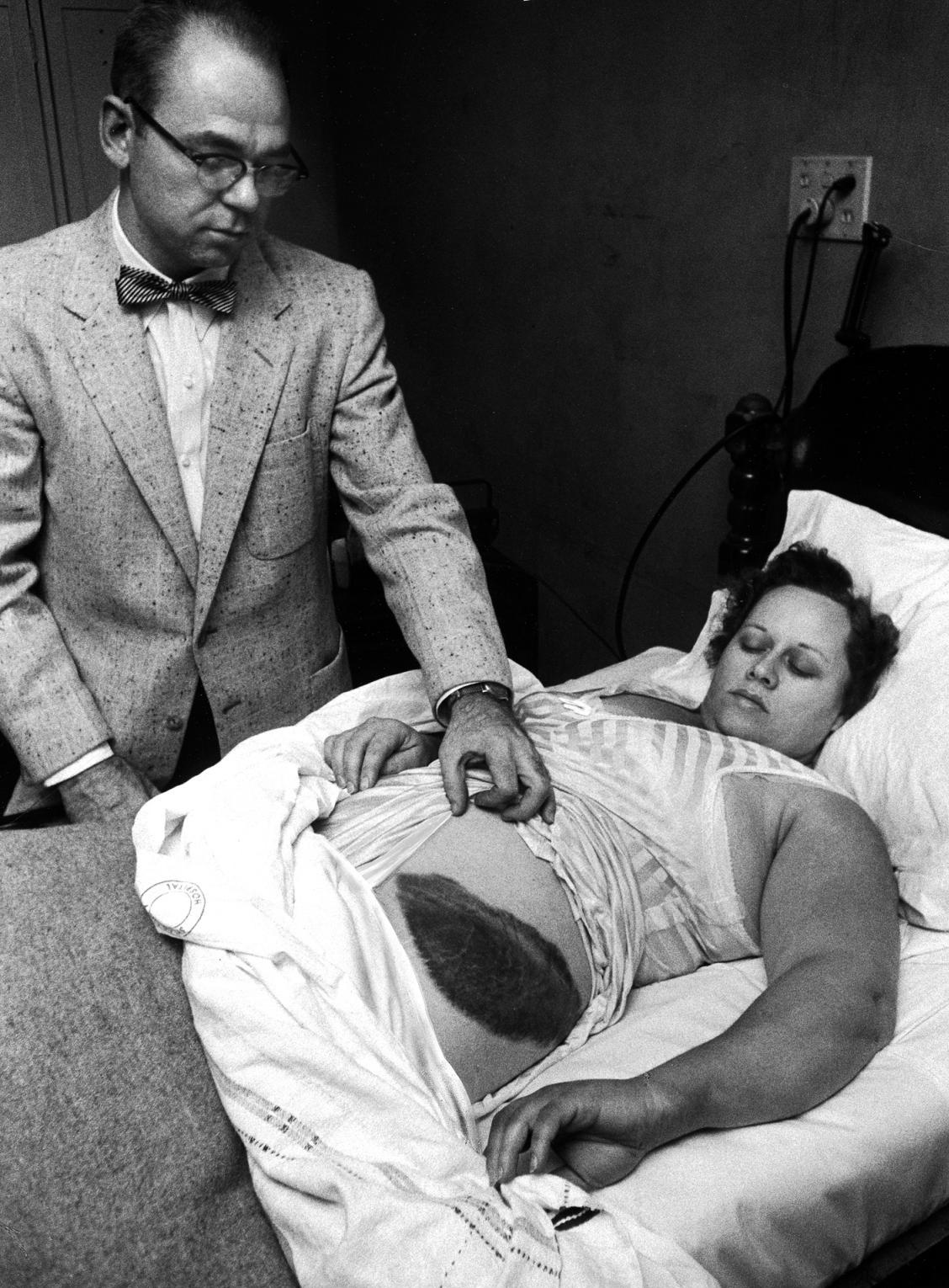 Ann Hodges struck with meteorite in 1954 in Alabama